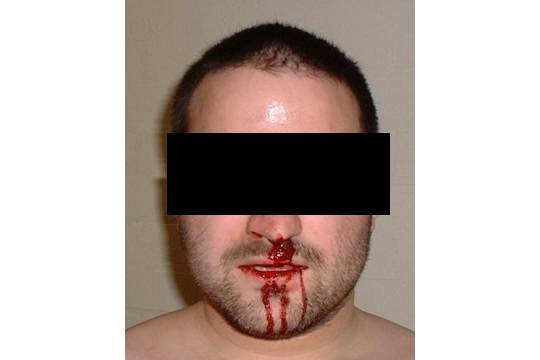 Гражданин Зеленодольска откусил нос громкому соседу